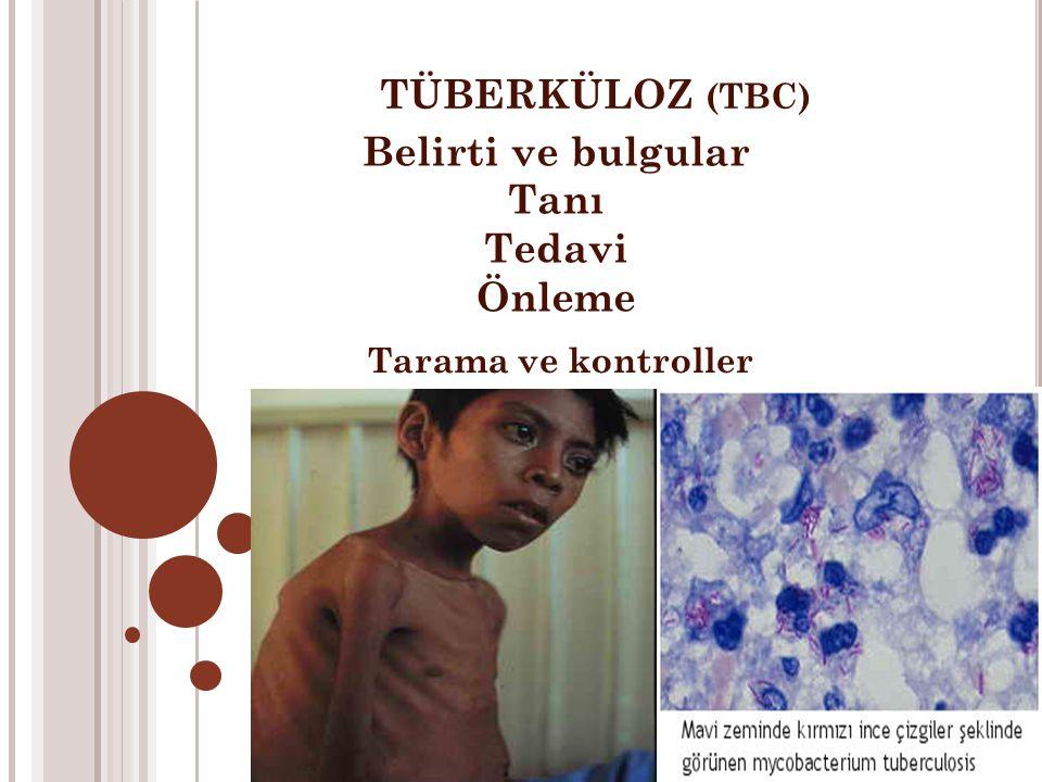 TÜBERKÜLOZ (TBC) Belirti ve bulgular Tanı Tedavi Önleme Tarama ve kontroller
