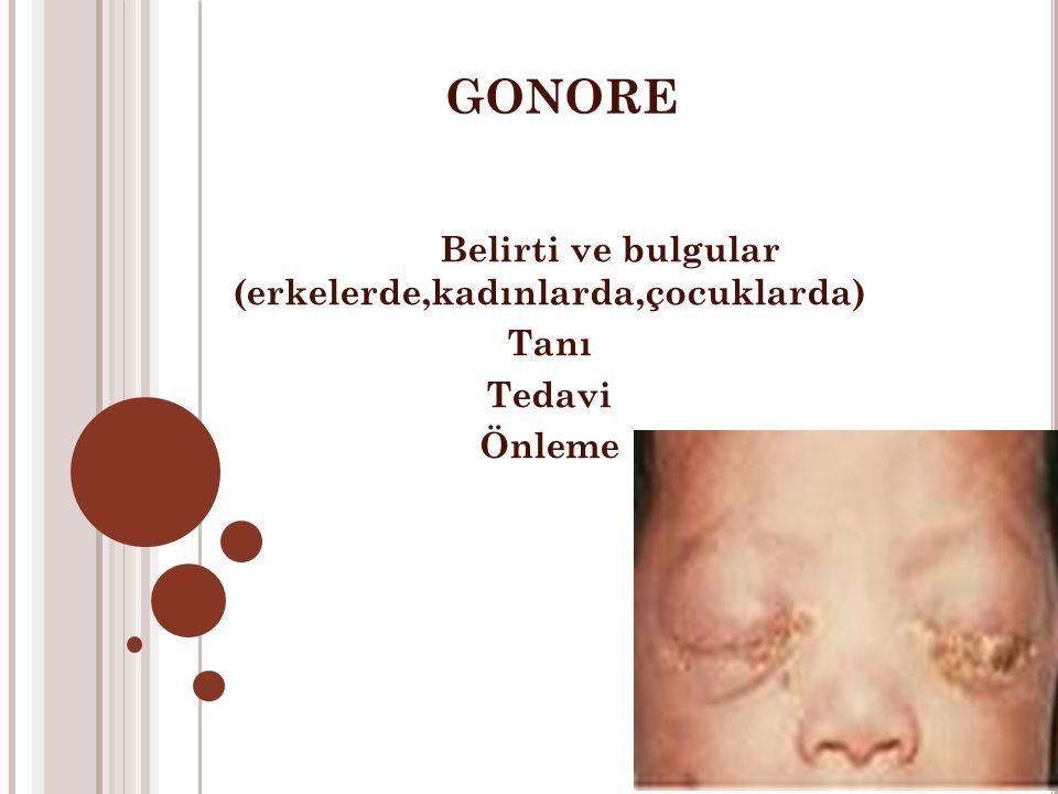 GONORE Belirti ve bulgular (erkelerde,kadınlarda,çocuklarda) Tanı Tedavi Önleme
