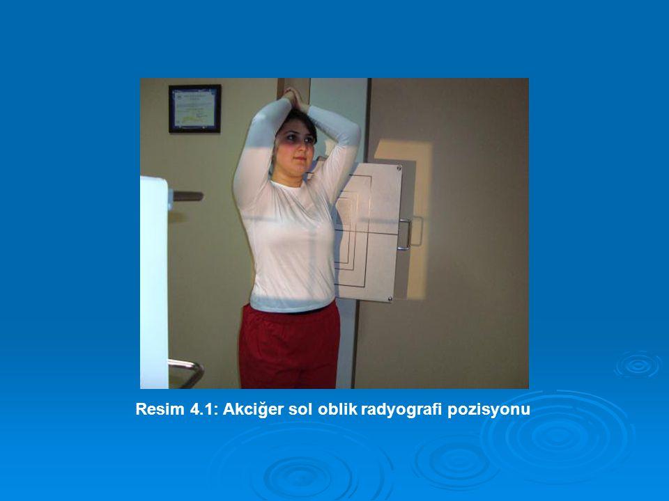 Resim 4.1: Akciğer sol oblik radyografi pozisyonu