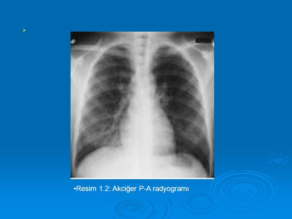   Resim 1.2: Akciğer P-A radyogramı