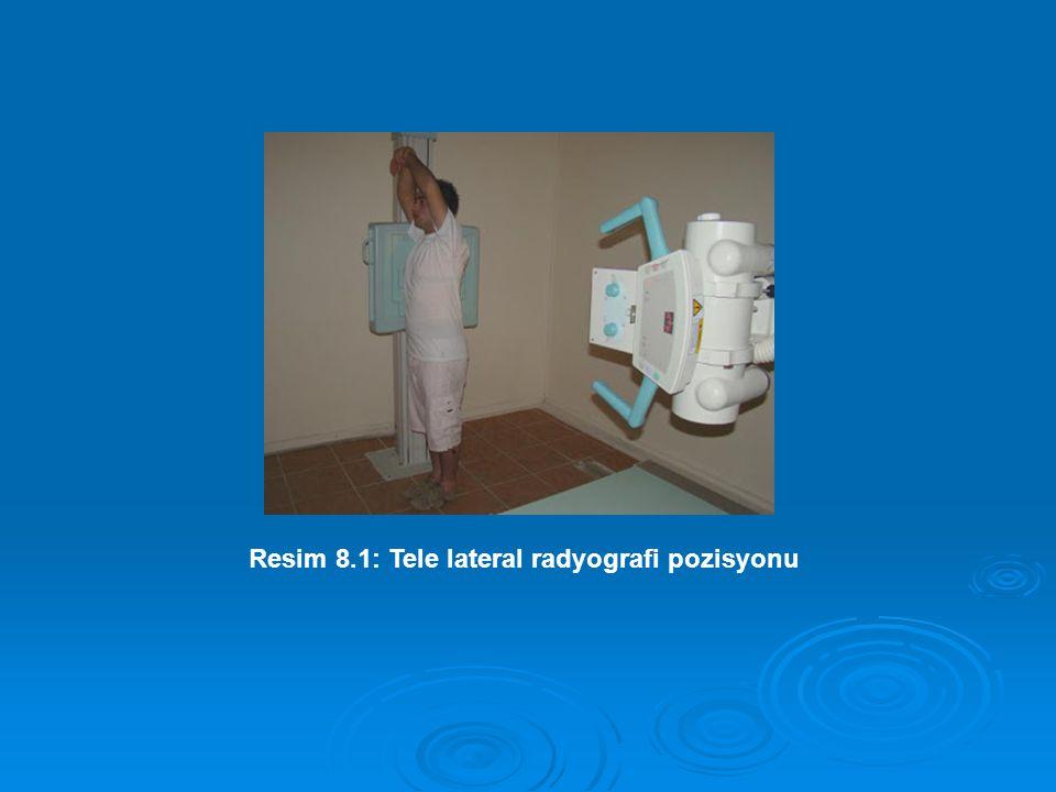 Resim 8.1: Tele lateral radyografi pozisyonu