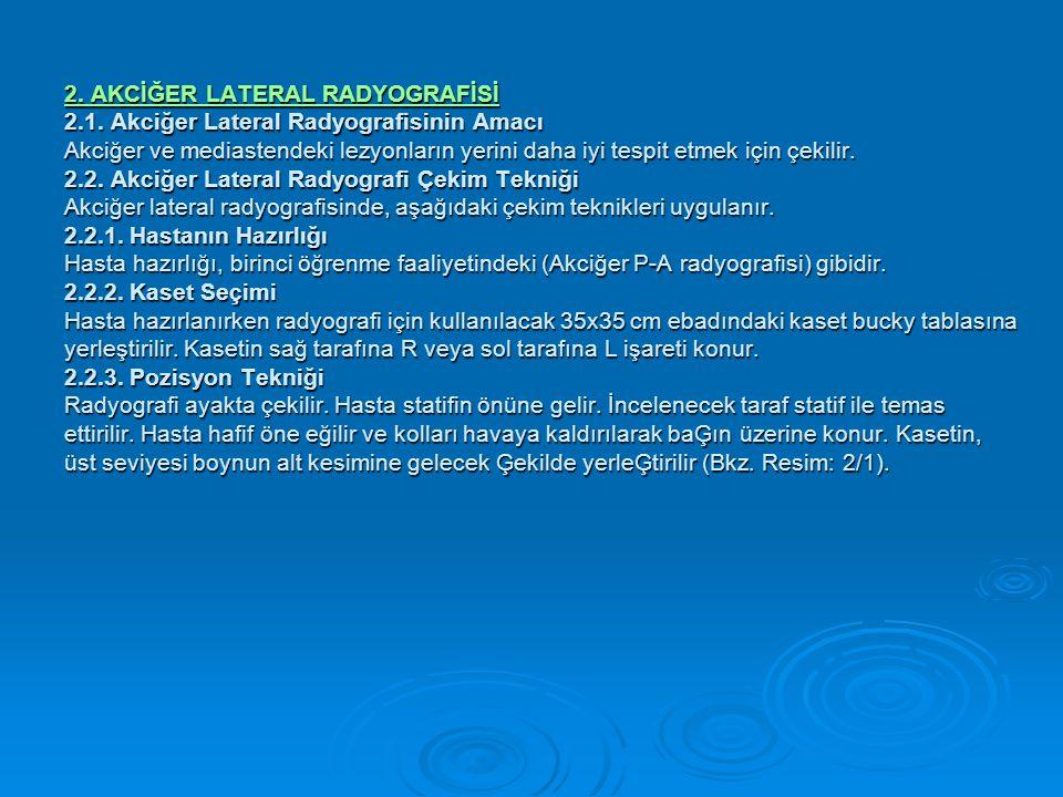 2.AKCİĞER LATERAL RADYOGRAFİSİ 2. AKCİĞER LATERAL RADYOGRAFİSİ 2.1.