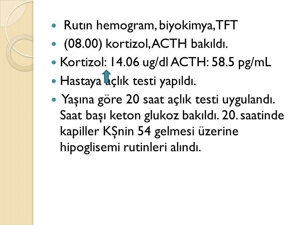 Rutın hemogram, biyokimya, TFT (08.00) kortizol, ACTH bakıldı. Kortizol: 14.06 ug/dl ACTH: 58.5 pg/mL Hastaya açlık testi yapıldı. Yaşına göre 20 saat