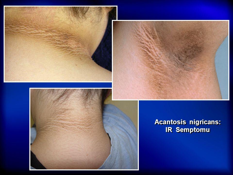 Acantosis nigricans: IR Semptomu Acantosis nigricans: IR Semptomu