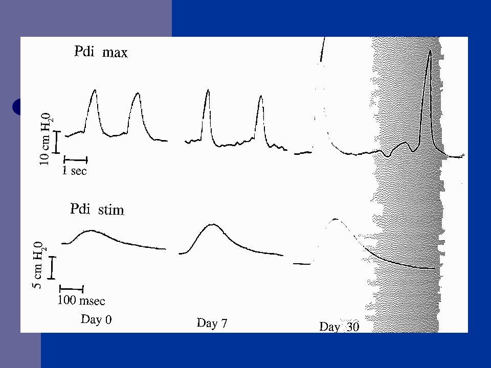 SONUÇLAR EN tercih edilmeli Resüsitasyon sonrası 24-48 saat içinde (erken) EN başlanmalı Arginin içeren ürünler kullanılmamalı ARDS hastalarında enteral  -3 yağ asidi ve antioksidan kullanılabilir Yanık ve travma hastalarında enteral glutamin kullanılabilir Beslenmeyi tolere edemeyen hastalara metoclopramide başlanmalı Canadian Clinical Practice Guidelines for nutrition support in mechanically ventilated, critically ill adult patients.