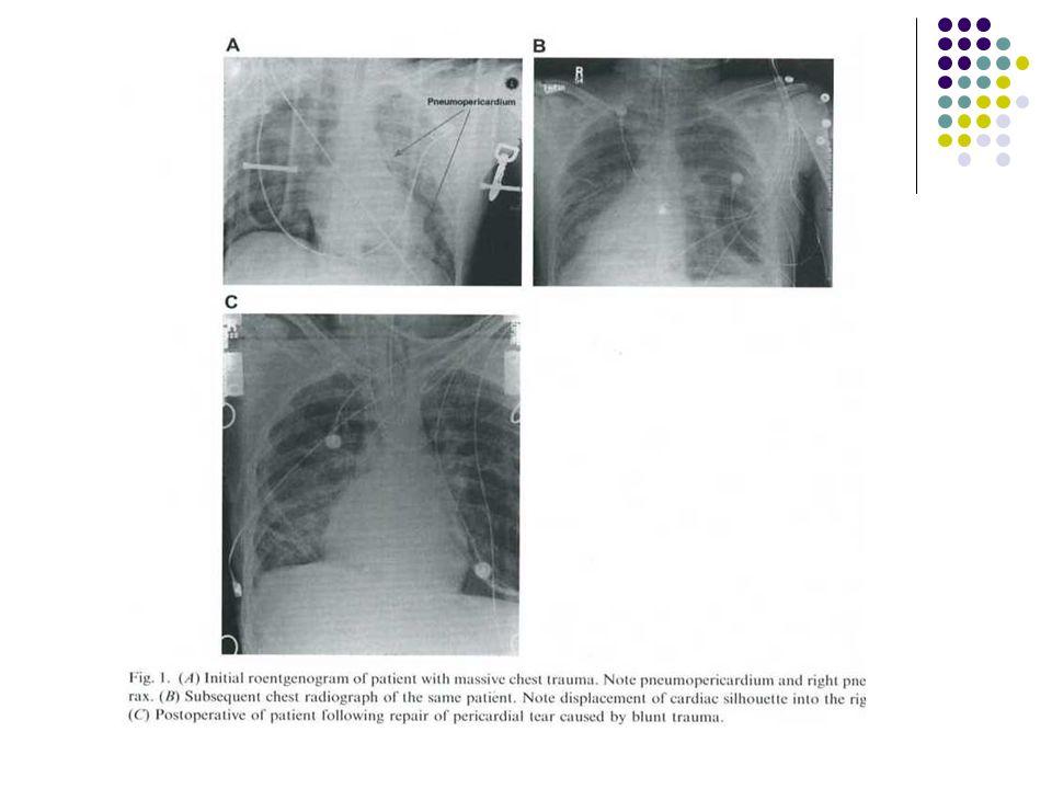 Prekordial-epigastrik yaralanma hipotansiyon Kardiyak injuri şüphesi Hava yolu kontrolü CVP monitor.