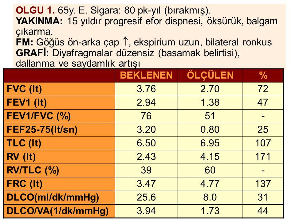 OLGU 1. 65y. E. Sigara: 80 pk-yıl (bırakmış). YAKINMA: 15 yıldır progresif efor dispnesi, öksürük, balgam çıkarma. FM: Göğüs ön-arka çap , ekspirium