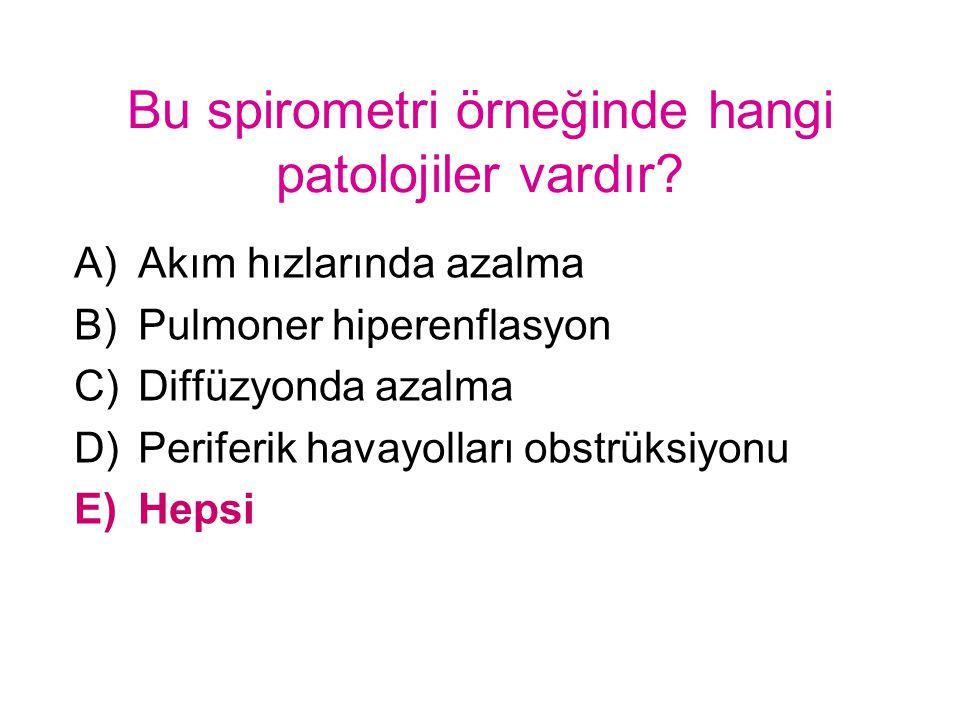 Bu spirometri örneğinde hangi patolojiler vardır? A)Akım hızlarında azalma B)Pulmoner hiperenflasyon C)Diffüzyonda azalma D)Periferik havayolları obst