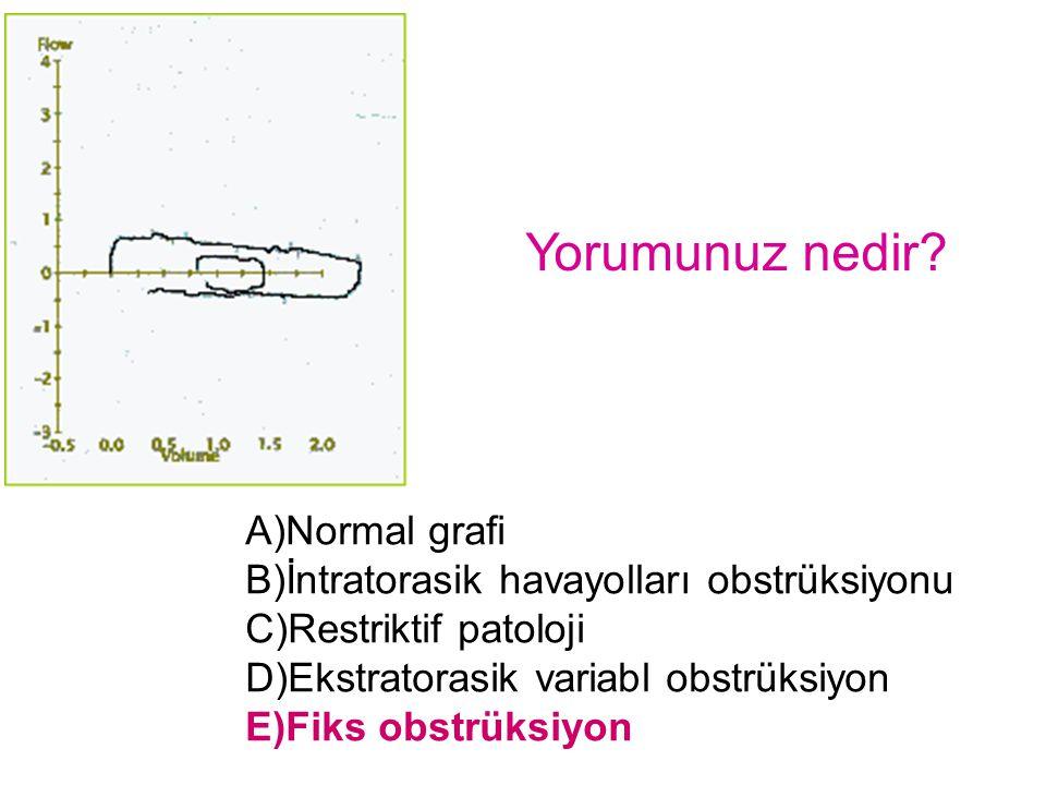 Yorumunuz nedir? A)Normal grafi B)İntratorasik havayolları obstrüksiyonu C)Restriktif patoloji D)Ekstratorasik variabl obstrüksiyon E)Fiks obstrüksiyo