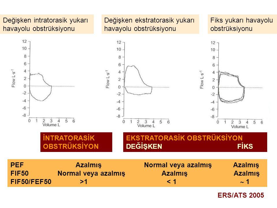 Değişken intratorasik yukarı havayolu obstrüksiyonu Değişken ekstratorasik yukarı havayolu obstrüksiyonu Fiks yukarı havayolu obstrüksiyonu EKSTRATORA