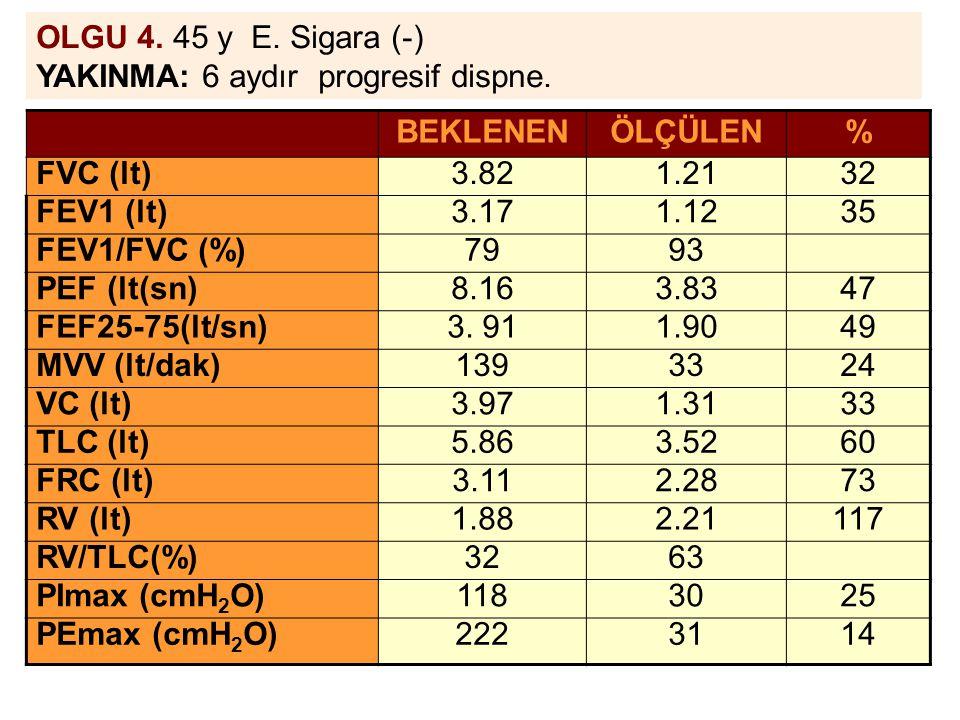 OLGU 4. 45 y E. Sigara (-) YAKINMA: 6 aydır progresif dispne. BEKLENENÖLÇÜLEN% FVC (lt)3.821.2132 FEV1 (lt)3.171.1235 FEV1/FVC (%)7993 PEF (lt(sn)8.16