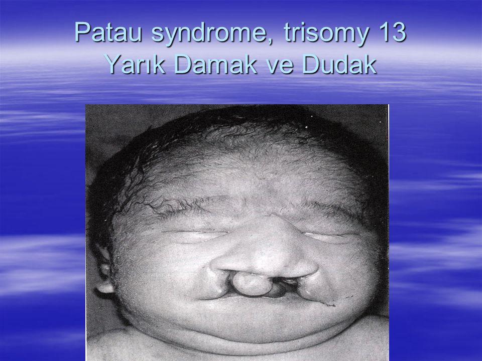 Patau syndrome, trisomy 13 Yarık Damak ve Dudak 47,XX,+13 or 47,XY,+13