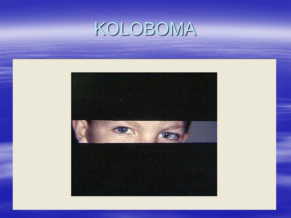 KOLOBOMA