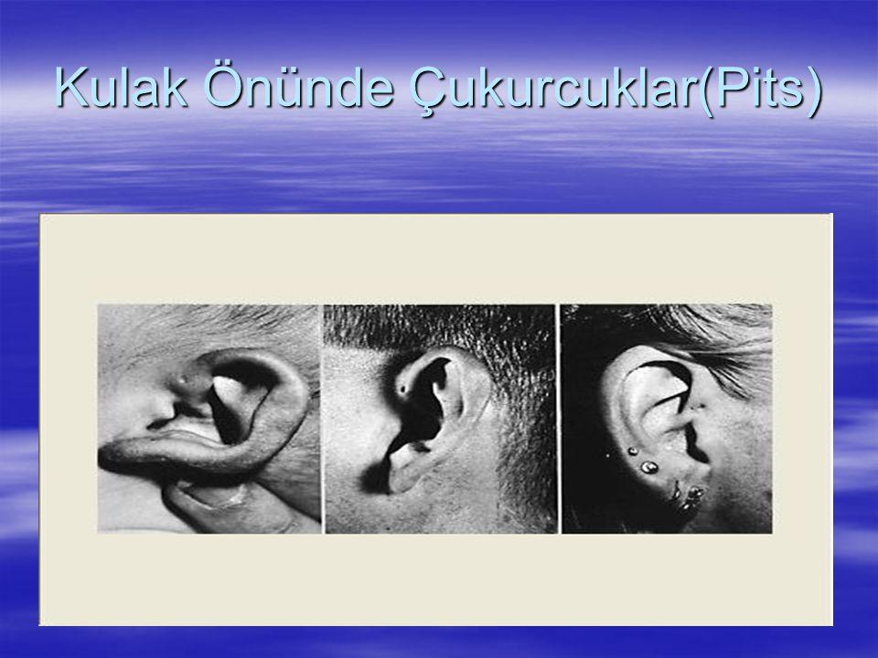 Kulak Önünde Çukurcuklar(Pits)