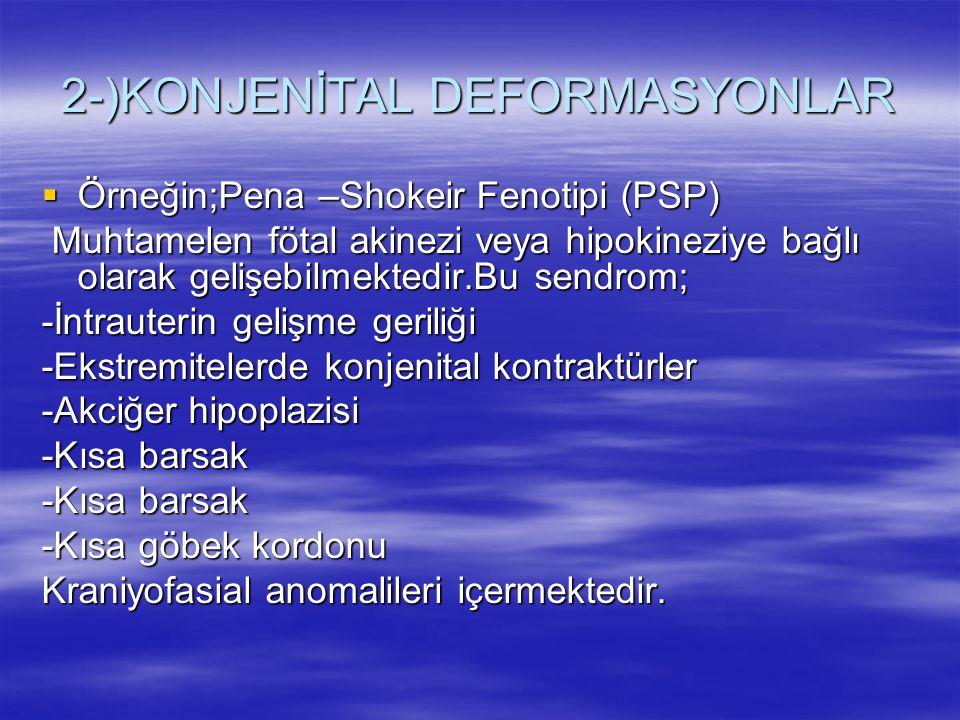 2-)KONJENİTAL DEFORMASYONLAR  Örneğin;Pena –Shokeir Fenotipi (PSP) Muhtamelen fötal akinezi veya hipokineziye bağlı olarak gelişebilmektedir.Bu sendr