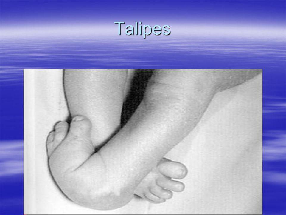 Talipes