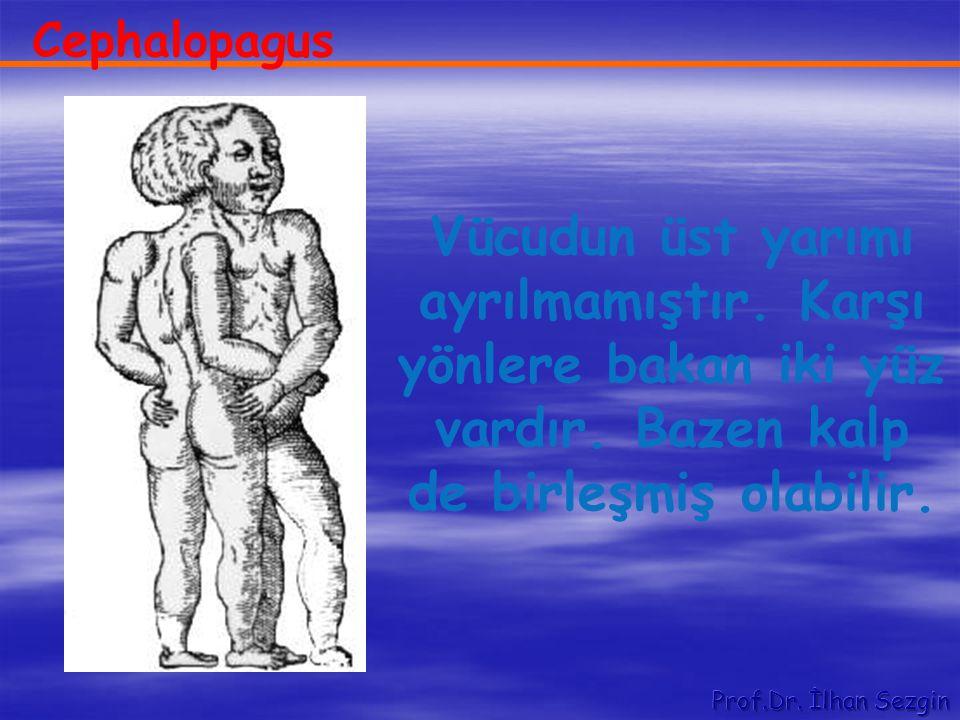 Cephalopagus Vücudun üst yarımı ayrılmamıştır. Karşı yönlere bakan iki yüz vardır. Bazen kalp de birleşmiş olabilir.
