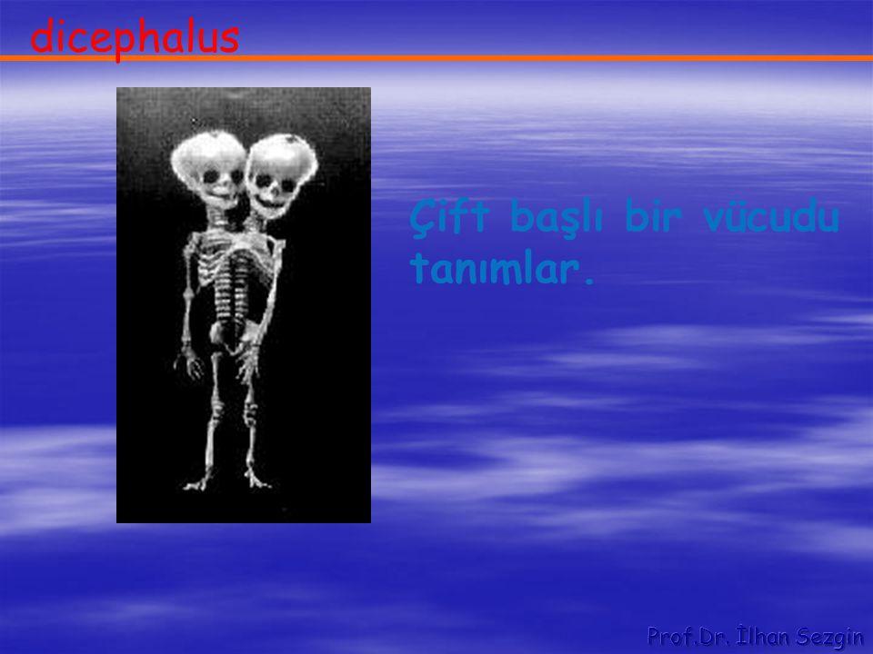 dicephalus Çift başlı bir vücudu tanımlar.