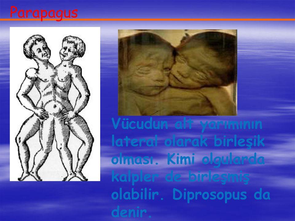 Parapagus Vücudun alt yarımının lateral olarak birleşik olması. Kimi olgularda kalpler de birleşmiş olabilir. Diprosopus da denir.