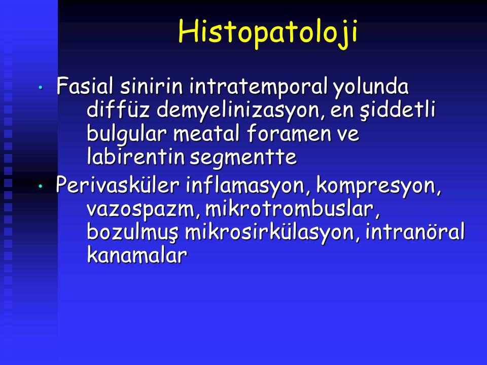 Histopatoloji Fasial sinirin intratemporal yolunda diffüz demyelinizasyon, en şiddetli bulgular meatal foramen ve labirentin segmentte Fasial sinirin