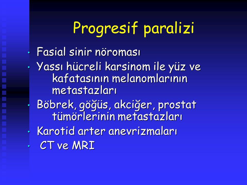 Progresif paralizi Fasial sinir nöroması Fasial sinir nöroması Yassı hücreli karsinom ile yüz ve kafatasının melanomlarının metastazları Yassı hücreli