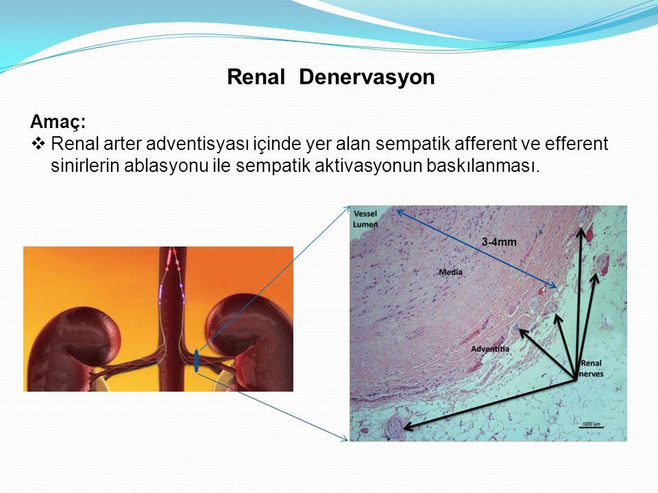 Amaç:  Renal arter adventisyası içinde yer alan sempatik afferent ve efferent sinirlerin ablasyonu ile sempatik aktivasyonun baskılanması. Renal Dene