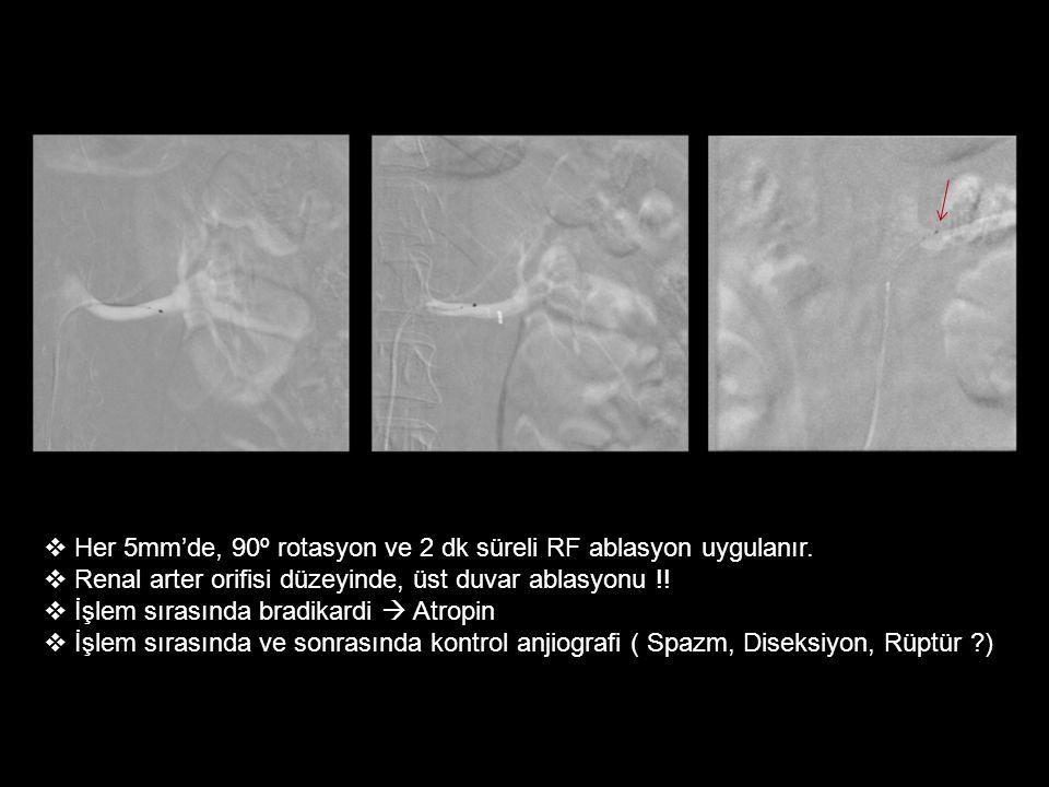  Her 5mm'de, 90º rotasyon ve 2 dk süreli RF ablasyon uygulanır.  Renal arter orifisi düzeyinde, üst duvar ablasyonu !!  İşlem sırasında bradikardi