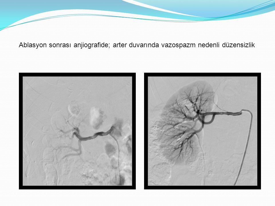 Ablasyon sonrası anjiografide; arter duvarında vazospazm nedenli düzensizlik