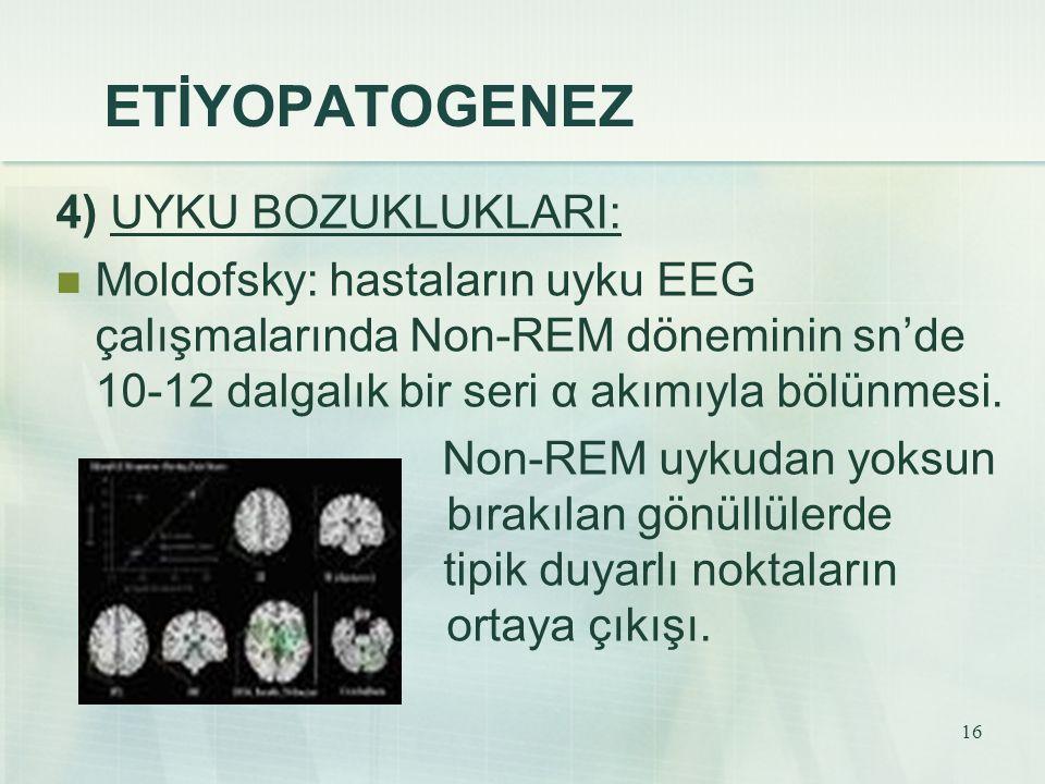 16 ETİYOPATOGENEZ 4) UYKU BOZUKLUKLARI: Moldofsky: hastaların uyku EEG çalışmalarında Non-REM döneminin sn'de 10-12 dalgalık bir seri α akımıyla bölün