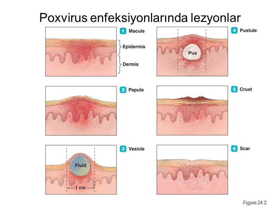 Poxvirus enfeksiyonlarında lezyonlar Figure 24.2