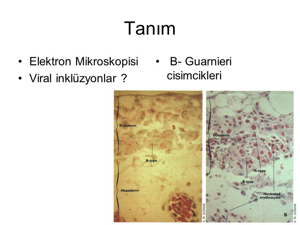 Tanım Elektron Mikroskopisi Viral inklüzyonlar ? B- Guarnieri cisimcikleri