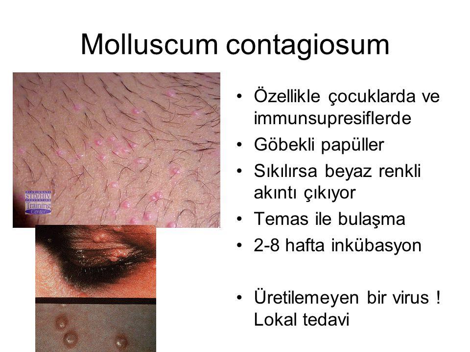 Molluscum contagiosum Özellikle çocuklarda ve immunsupresiflerde Göbekli papüller Sıkılırsa beyaz renkli akıntı çıkıyor Temas ile bulaşma 2-8 hafta inkübasyon Üretilemeyen bir virus .