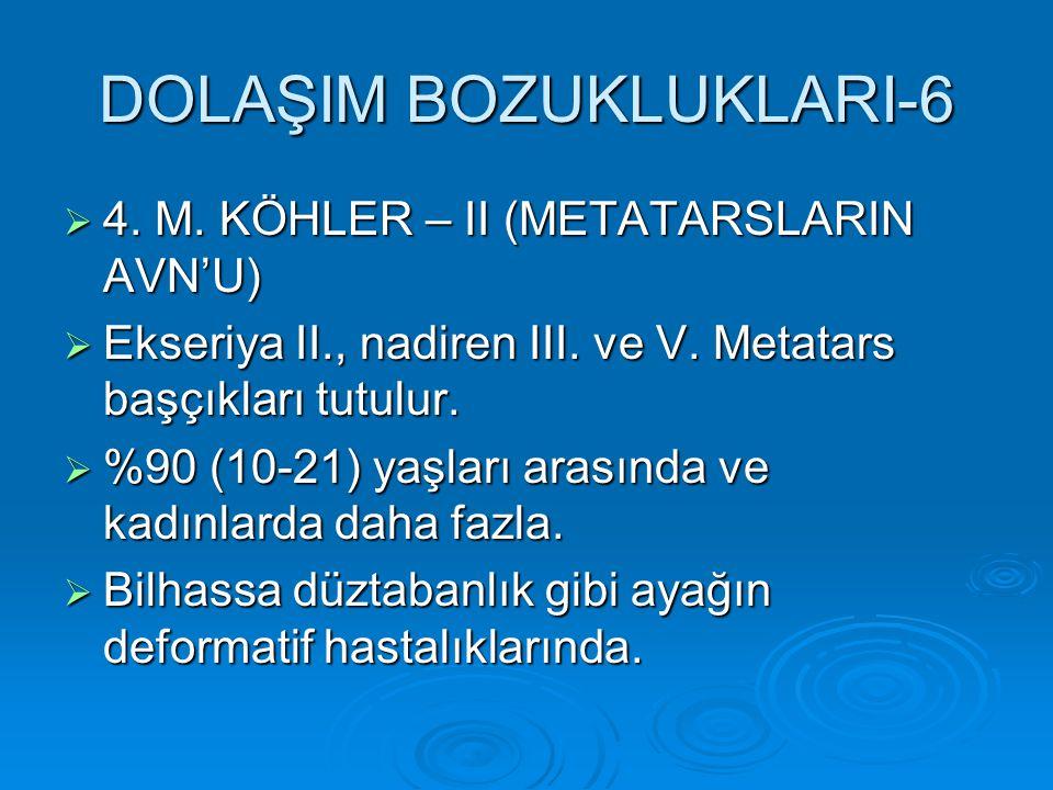 DOLAŞIM BOZUKLUKLARI-6  4. M. KÖHLER – II (METATARSLARIN AVN'U)  Ekseriya II., nadiren III. ve V. Metatars başçıkları tutulur.  %90 (10-21) yaşları