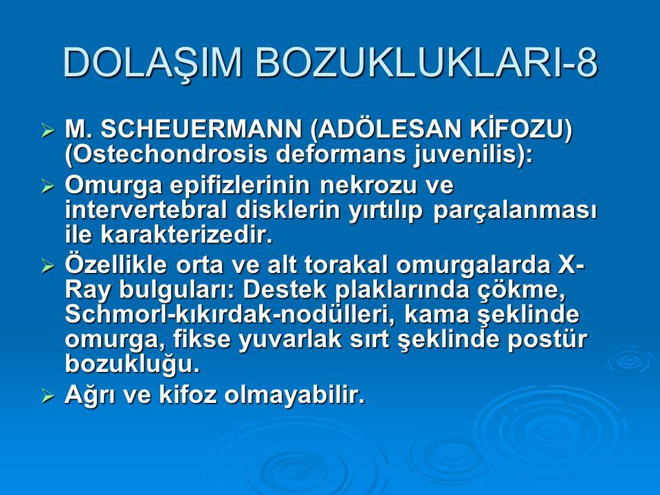 DOLAŞIM BOZUKLUKLARI-8  M. SCHEUERMANN (ADÖLESAN KİFOZU) (Ostechondrosis deformans juvenilis):  Omurga epifizlerinin nekrozu ve intervertebral diskl