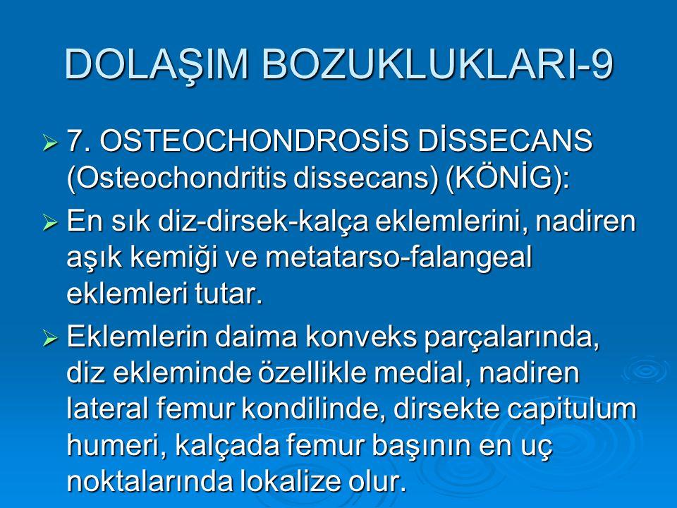 DOLAŞIM BOZUKLUKLARI-9  7. OSTEOCHONDROSİS DİSSECANS (Osteochondritis dissecans) (KÖNİG):  En sık diz-dirsek-kalça eklemlerini, nadiren aşık kemiği