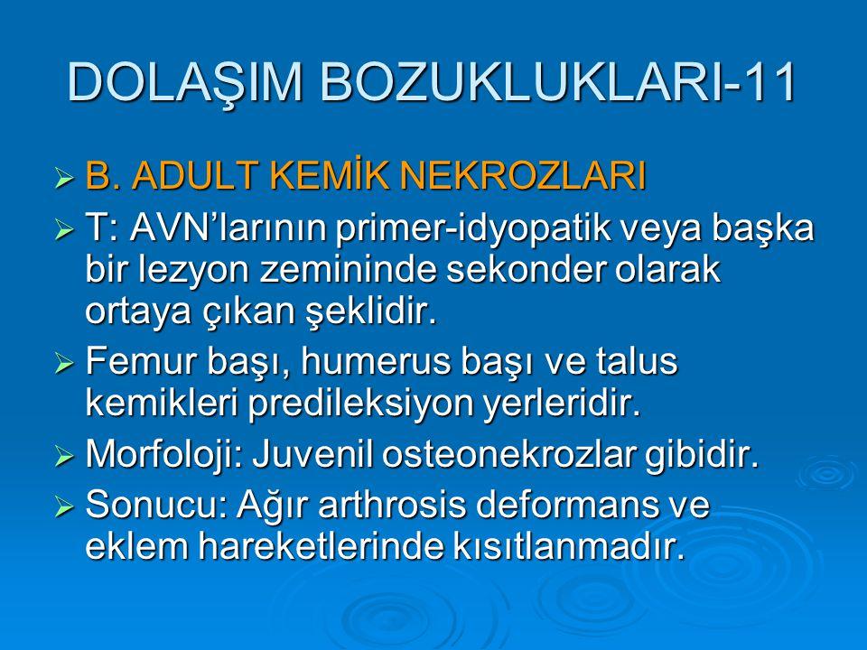 DOLAŞIM BOZUKLUKLARI-11  B. ADULT KEMİK NEKROZLARI  T: AVN'larının primer-idyopatik veya başka bir lezyon zemininde sekonder olarak ortaya çıkan şek