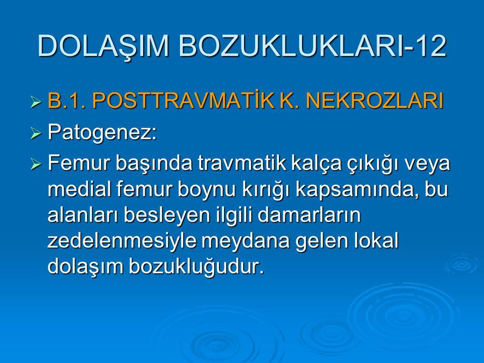 DOLAŞIM BOZUKLUKLARI-12  B.1. POSTTRAVMATİK K. NEKROZLARI  Patogenez:  Femur başında travmatik kalça çıkığı veya medial femur boynu kırığı kapsamın