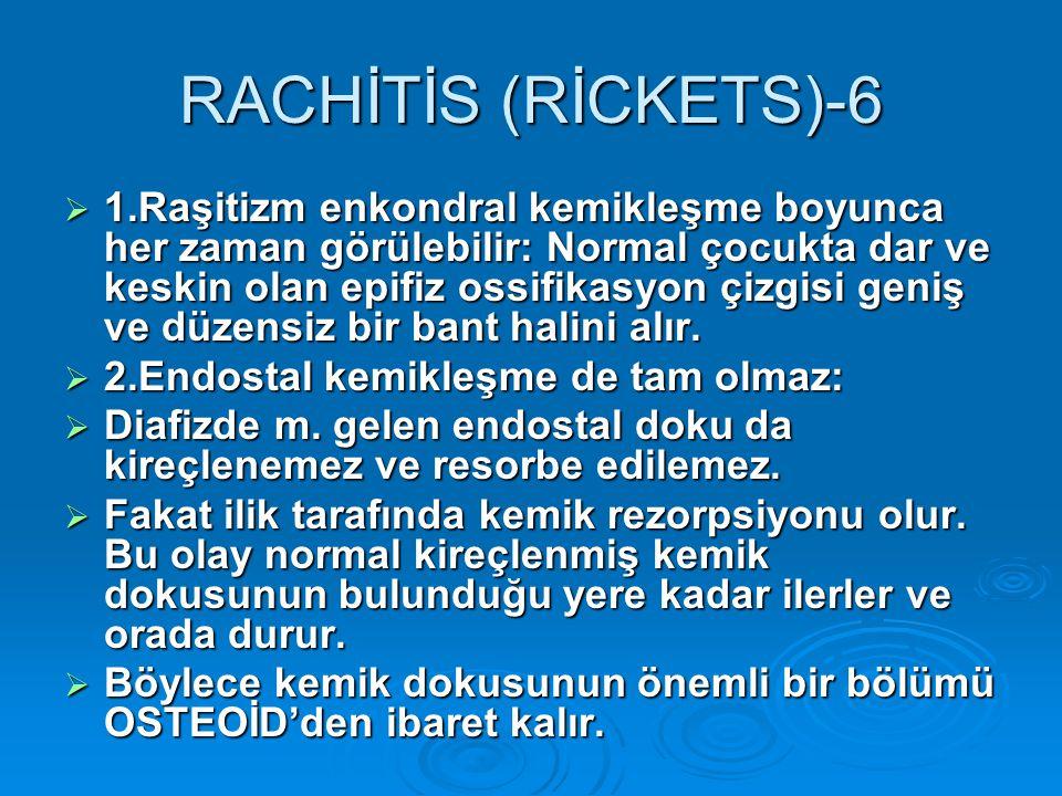 RACHİTİS (RİCKETS)-6  1.Raşitizm enkondral kemikleşme boyunca her zaman görülebilir: Normal çocukta dar ve keskin olan epifiz ossifikasyon çizgisi ge