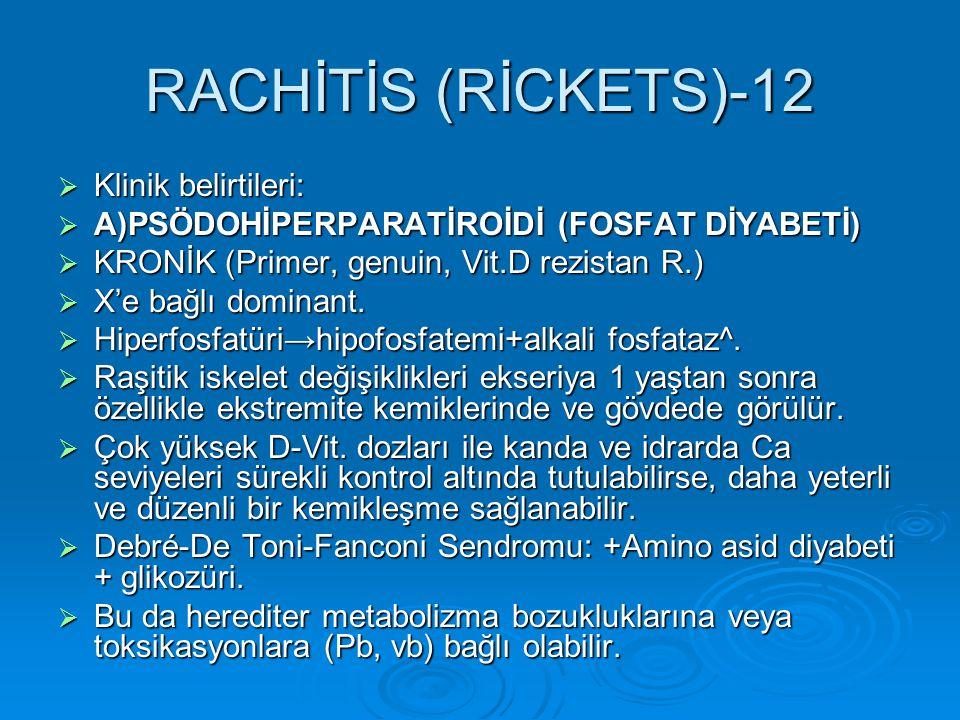 RACHİTİS (RİCKETS)-12  Klinik belirtileri:  A)PSÖDOHİPERPARATİROİDİ (FOSFAT DİYABETİ)  KRONİK (Primer, genuin, Vit.D rezistan R.)  X'e bağlı domin