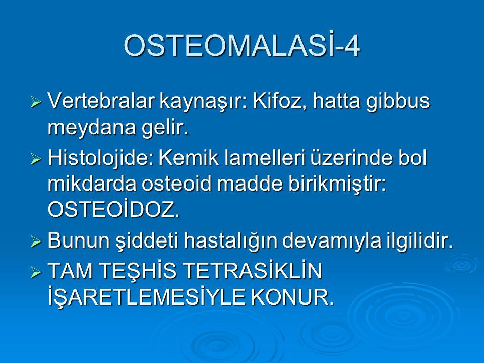 OSTEOMALASİ-4  Vertebralar kaynaşır: Kifoz, hatta gibbus meydana gelir.  Histolojide: Kemik lamelleri üzerinde bol mikdarda osteoid madde birikmişti