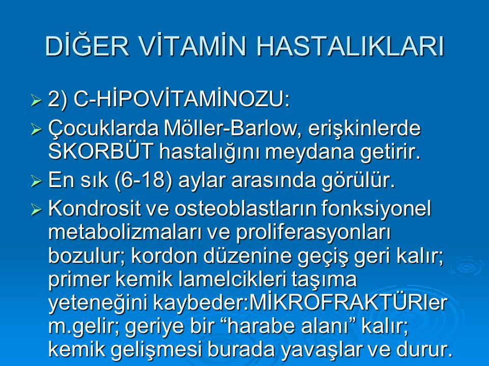 DİĞER VİTAMİN HASTALIKLARI  2) C-HİPOVİTAMİNOZU:  Çocuklarda Möller-Barlow, erişkinlerde SKORBÜT hastalığını meydana getirir.  En sık (6-18) aylar