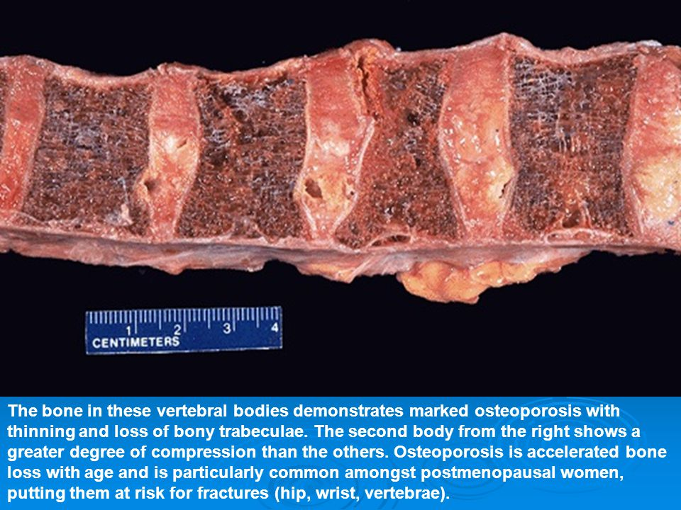 The bone in these vertebral bodies demonstrates marked osteoporosis with thinning and loss of bony trabeculae. The second body from the right shows a