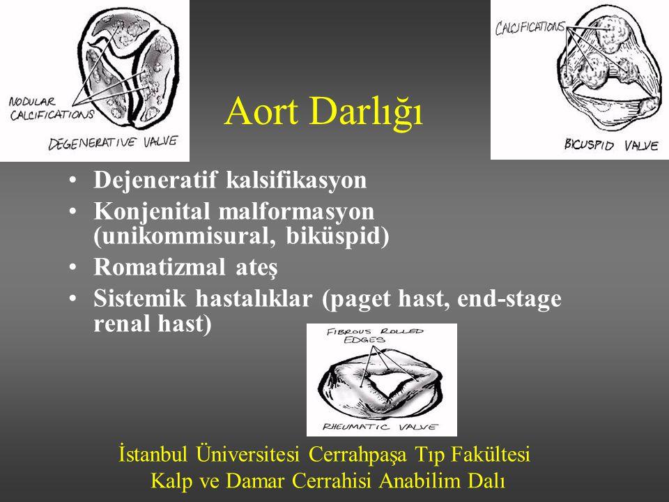 İstanbul Üniversitesi Cerrahpaşa Tıp Fakültesi Kalp ve Damar Cerrahisi Anabilim Dalı Aort Darlığı Dejeneratif kalsifikasyon Konjenital malformasyon (u