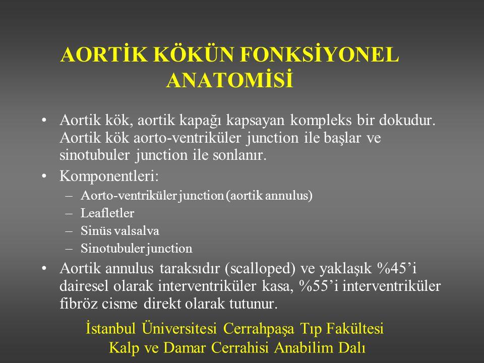 İstanbul Üniversitesi Cerrahpaşa Tıp Fakültesi Kalp ve Damar Cerrahisi Anabilim Dalı AORT YETMEZLİĞİ-Patofizyoloji Sol ventrikülün diyastoldeki aşırı volüm yüklenmesi Sol ventrikül diyastol sonu volümü artar Total atım hacmi artar Sol ventrikül ejeksiyon zamanı ve sistolik kan basıncı yükselir Aort diyastolik basıncı ve diyastol süresi düşer Diyastol sonu duvar gerilimi artar Ekzantrik hipertrofi gelişir Sol ventrikül çapında ve duvar kalınlığında eşit değerde artış olur Sonunda kontraksiyon ve ejeksiyon fraksiyonunda düşme