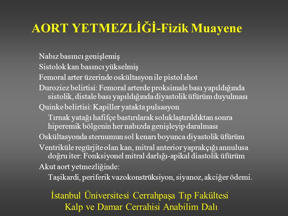 İstanbul Üniversitesi Cerrahpaşa Tıp Fakültesi Kalp ve Damar Cerrahisi Anabilim Dalı AORT YETMEZLİĞİ-Fizik Muayene Nabız basıncı genişlemiş Sistolok k