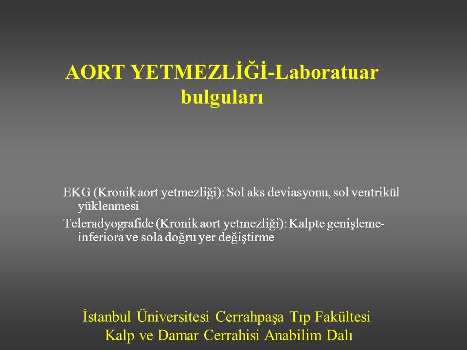 İstanbul Üniversitesi Cerrahpaşa Tıp Fakültesi Kalp ve Damar Cerrahisi Anabilim Dalı AORT YETMEZLİĞİ-Laboratuar bulguları EKG (Kronik aort yetmezliği)