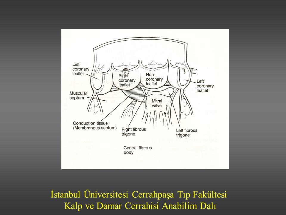 İstanbul Üniversitesi Cerrahpaşa Tıp Fakültesi Kalp ve Damar Cerrahisi Anabilim Dalı AORT YETMEZLİĞİ-Klinik bulgular Asemptomatik Efor dispnesi Ortopne Paroksismal nokturnal dispne Akciğer ödemi Senkop ve anjina az görülür Karın ağrısı Çarpıntı