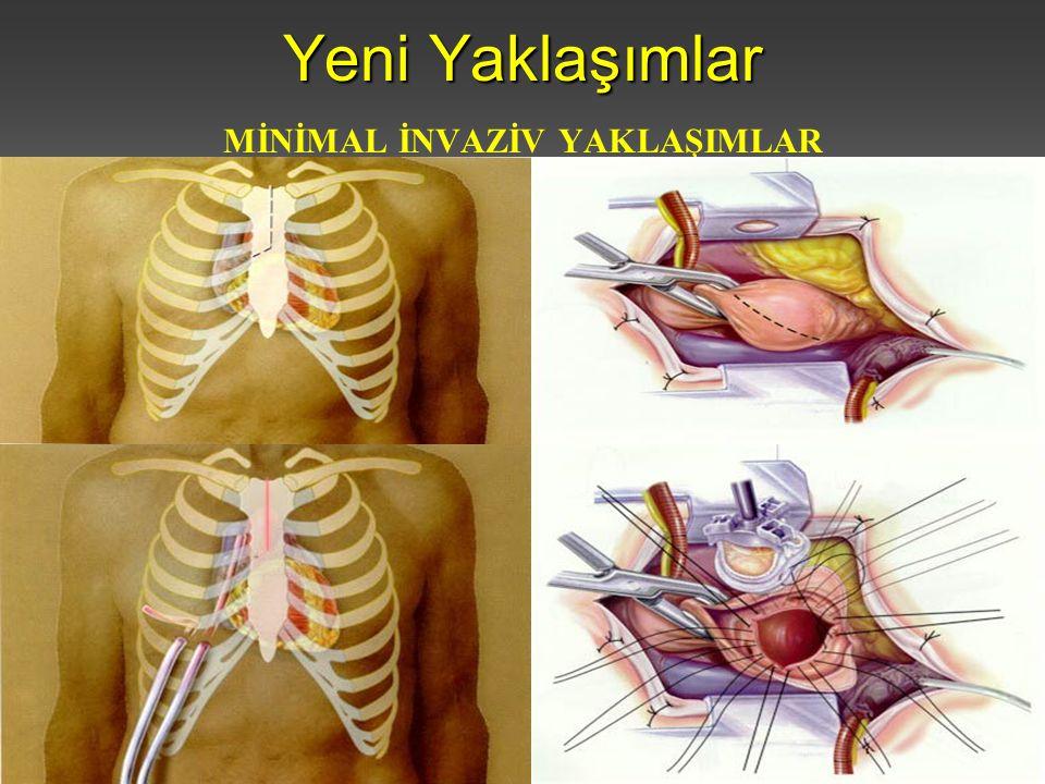 İstanbul Üniversitesi Cerrahpaşa Tıp Fakültesi Kalp ve Damar Cerrahisi Anabilim Dalı Yeni Yaklaşımlar MİNİMAL İNVAZİV YAKLAŞIMLAR