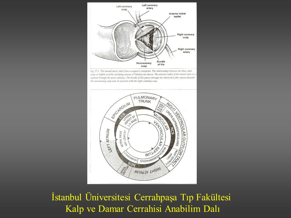 İstanbul Üniversitesi Cerrahpaşa Tıp Fakültesi Kalp ve Damar Cerrahisi Anabilim Dalı Ventrikül afterloadu artar Hipertrofiye kalın duvarlı sol ventrikül Erken dönemde kontraktil fonksiyon iyi ve EF korunmakta Geç dönemde ventrikül genişlemeye ve kontraktil fonksiyon bozulmaya başlar Sinüs ritm kaybı semptomların hızlı progresyonuna yol açabilir Patofizyoloji