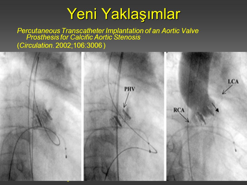 İstanbul Üniversitesi Cerrahpaşa Tıp Fakültesi Kalp ve Damar Cerrahisi Anabilim Dalı Yeni Yaklaşımlar Percutaneous Transcatheter Implantation of an Aortic Valve Prosthesis for Calcific Aortic Stenosis (Circulation.